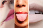 10 Things Your Lips Are Trying to Tell You About Your Health