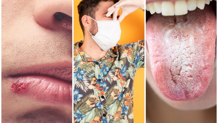 5 New Side Effects of Face Masks And How To Treat Them