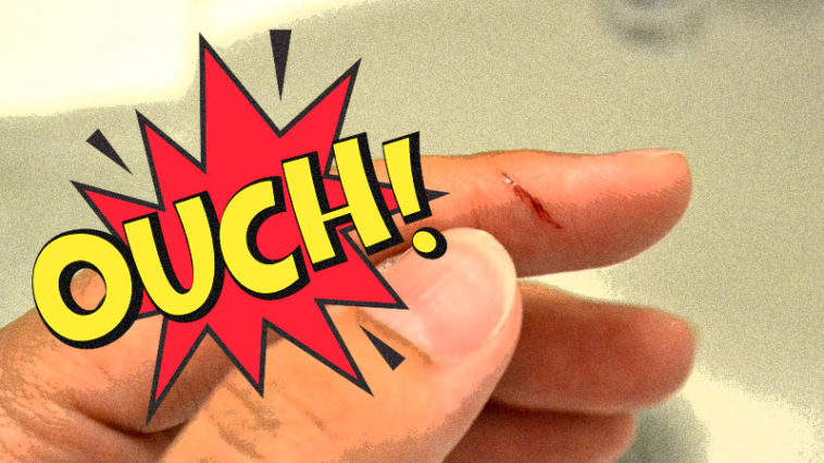 Why is paper cut causing such severe pain?