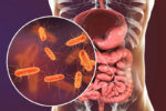 Intestinal gases smell unpleasant due to bacteria