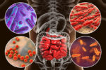 The War Inside Your Gut! Top 9 Enemies Of Your Digestive System