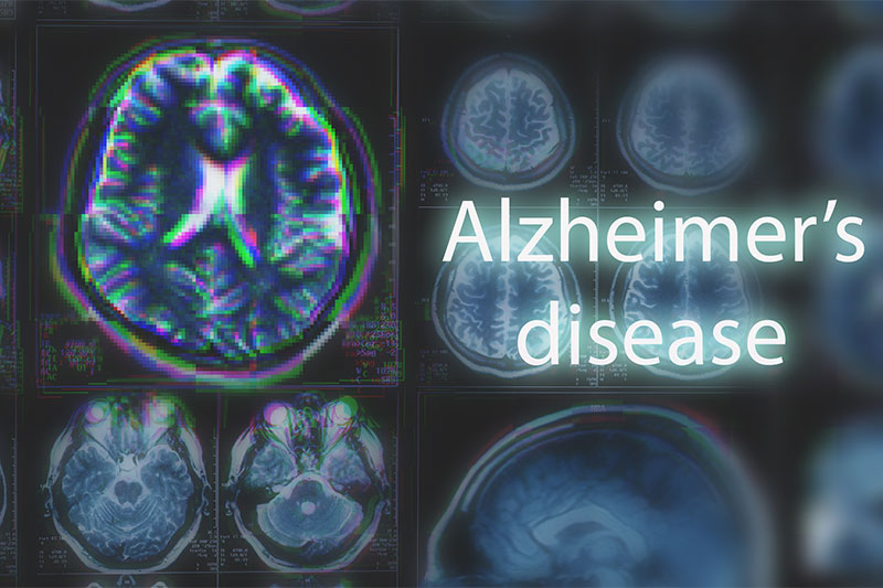 Can Alzheimer's Be Stopped? 9 Lifestyle Changes Can Help Prevent Alzheimer's Disease