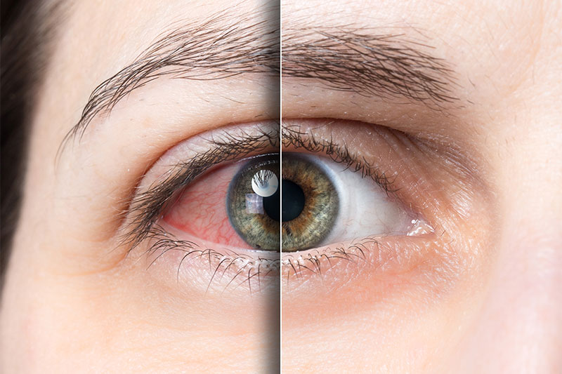 Tired Eyes? 10 Home Remedies That May Actually Work