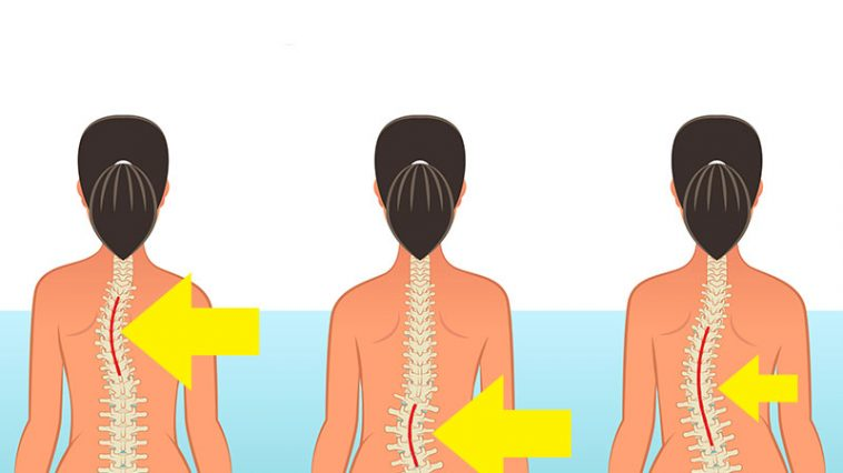 Avoid These 10 Common Activities That May Damage Your Spine