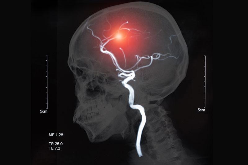 What is a Mini stroke?
