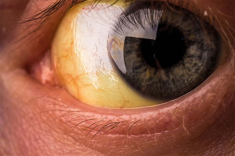 A Thick Yellow Eye Gunk Shows Infection