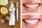8 Natural Ways to Make Your Teeth Whiter at Home