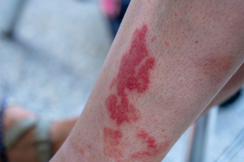Your Rash Appears Suddenly Like Bruise-Like Lesions