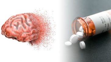 Caution! These 12 Drugs Can Cause Memory Loss
