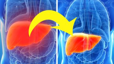10 Naturally Gentle ways to Remove Toxins from Your Liver, Bladder, and Kidneys