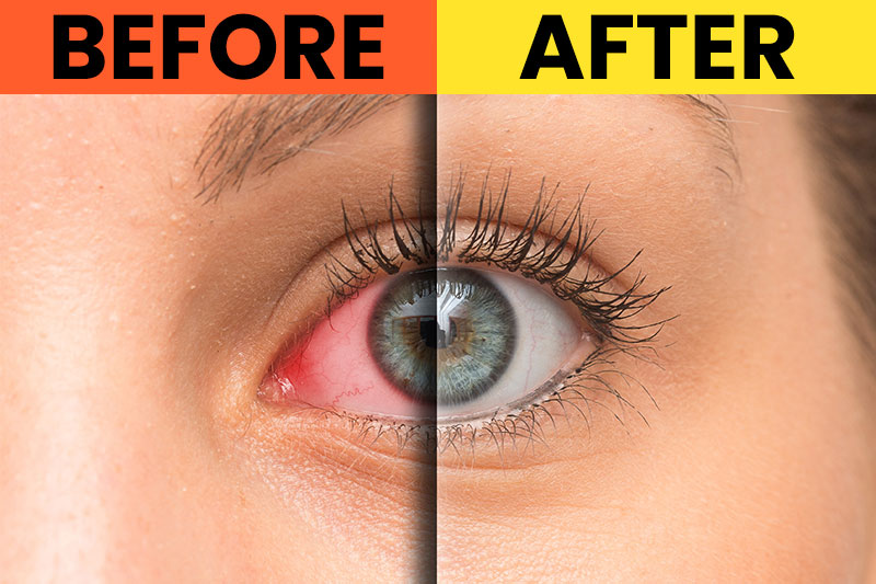 9 Exercises All People With Tired Eyes Need to Do