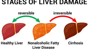 10 Warning Signs Of Nonalcoholic Fatty Liver Disease
