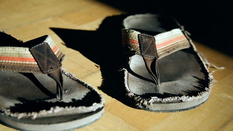 9 Reasons You Should Never Wear Flip Flops