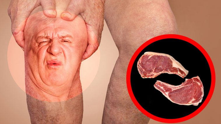 If You Suffer from Arthritis Pain and Joint Aches, Here's What You Should Know and What to Avoid!