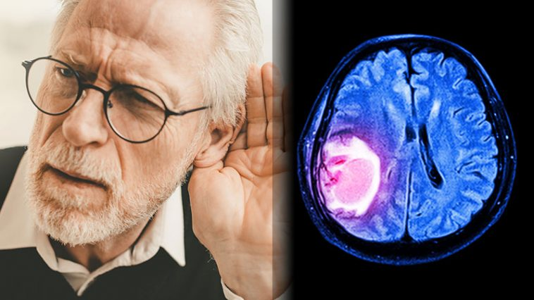 8 Silent Signs You Could Have a Brain Tumor