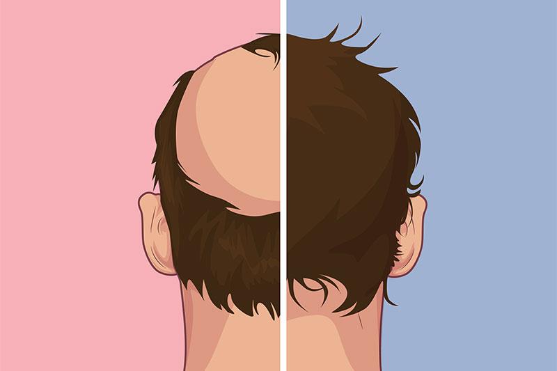 A solution for alopecia hair loss treatment