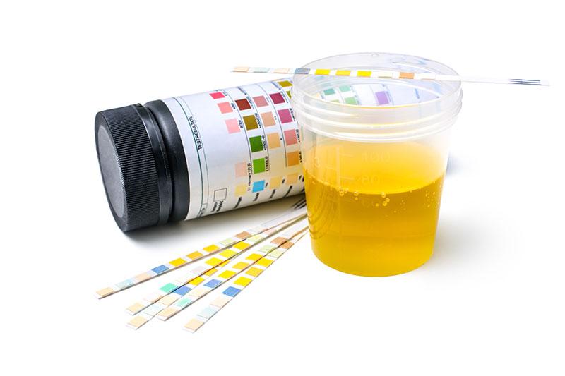 Urinalysis test