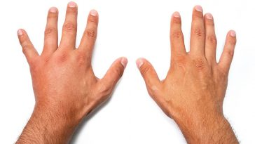 What Does It Mean When Your Hands Swell?