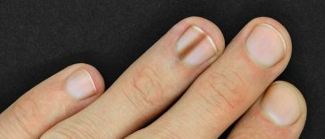 If You Have This Mark on Your Nail, You Should Get Checked for Cancer