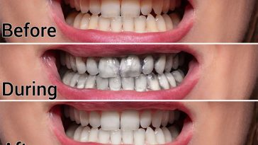 Ten Easy Ways to Naturally Whiten Your Teeth At Home Without Damaging Them
