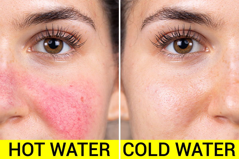 7 Wonders a Cold Shower Can Do for Your Skin