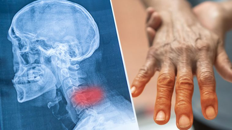 10 Causes of Hand Numbness Where You Need To See a Doctor Immediately