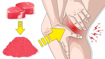 Top 10 Inflammatory Foods to Avoid Like the Plague