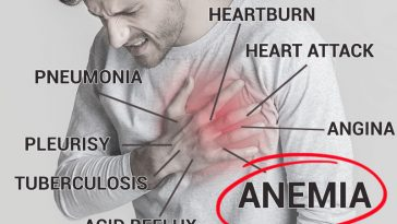 My Chest Hurts. Could I Be Anemic? (8 Silent Symptoms of Anemia)