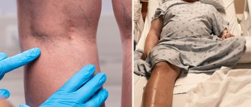 9 Things You Can Do to Prevent DVT, A Deadly Blood Clot In Your Leg