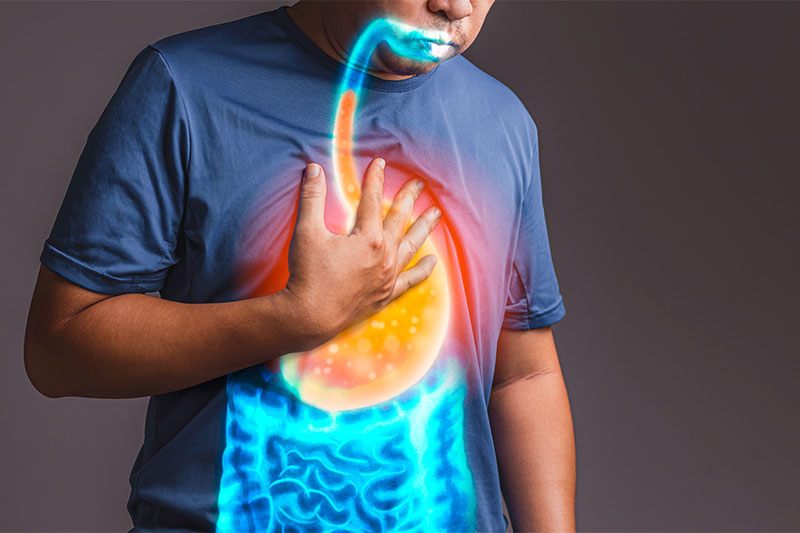 Silent Signs of Acid Reflux You Might Be Ignoring