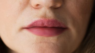 7 Reasons Your Lips are Tingling (#4 will surprise you)