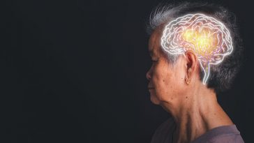 Mental Decline Could Predict a Stroke 10 Years Before It Happens