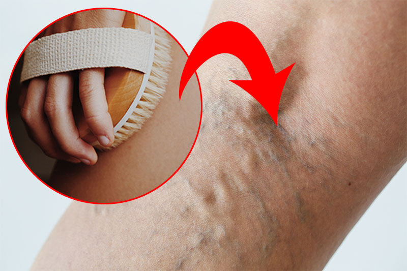 10 Vein-Damaging Habits That You Are Doing Every Day