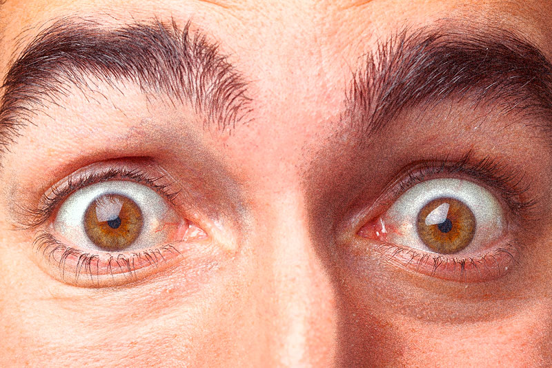 8 Scary Things Your Eyes Could Be Saying About Your Health