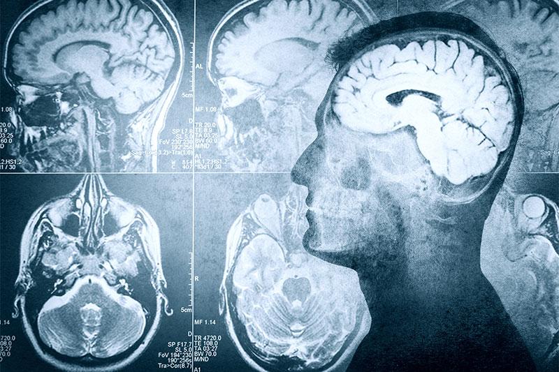 11 Brain Exercises to Help Keep You Mentally Sharp
