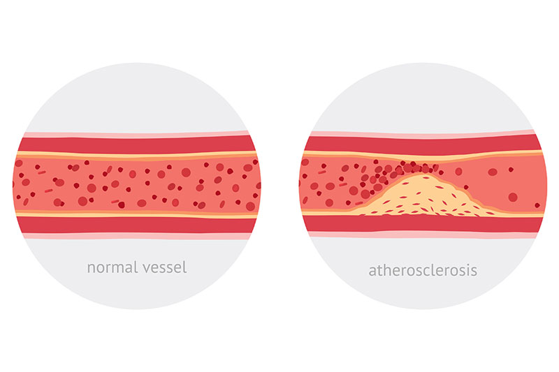 19 Foods that You Should Eat for Clean Arteries