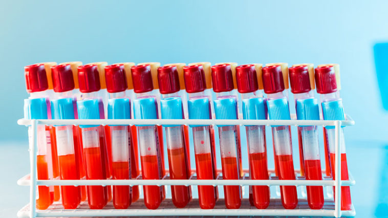 8 Reasons Everyone Should Know Their Blood Type