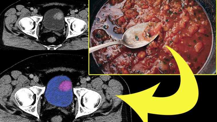 Scientists Identify 9 Foods That Reduce the Risk of Bladder Cancer