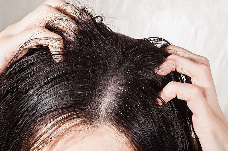 Get Rid of Dandruff with listerine