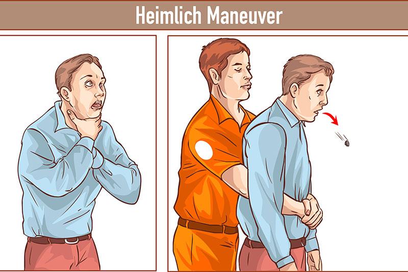 Choking Heimlich maneuver