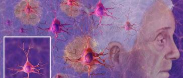 10 Dangerous Brain Damaging Habits To Stop Immediately