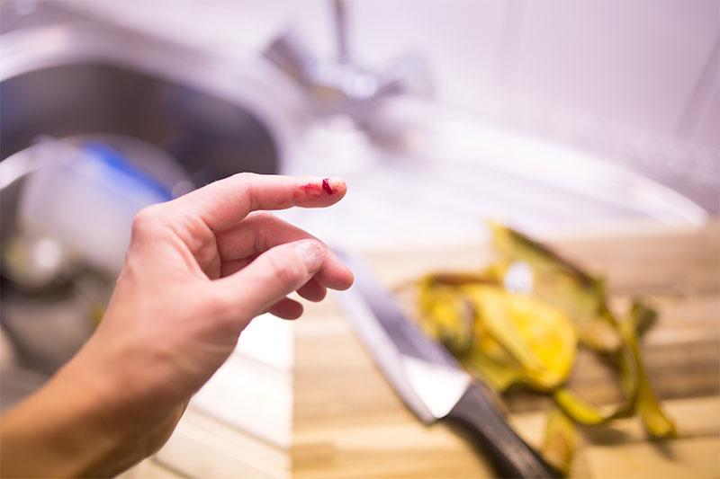knife finger cut