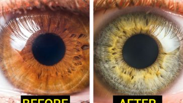 7 Kinds of food that can change the color of your eyes!