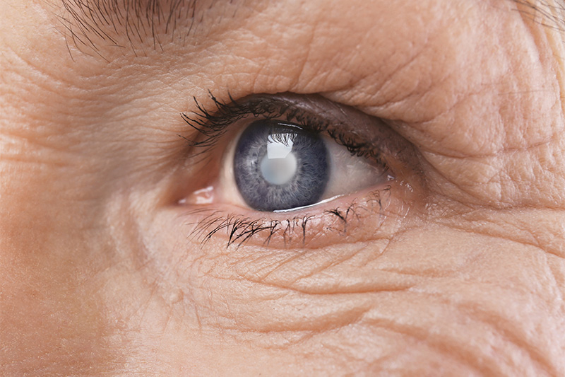 7 Silent Signs of Cataract You May Be Facing Without Knowing It