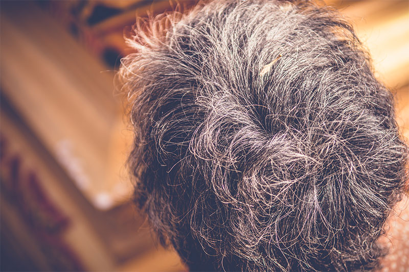 Understanding the Science of Gray/White Hair