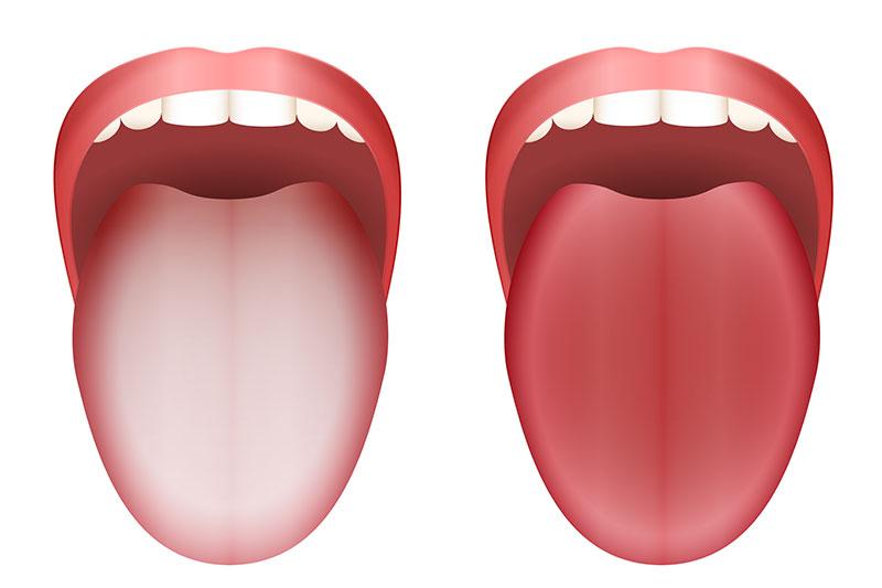 Smooth Tongue