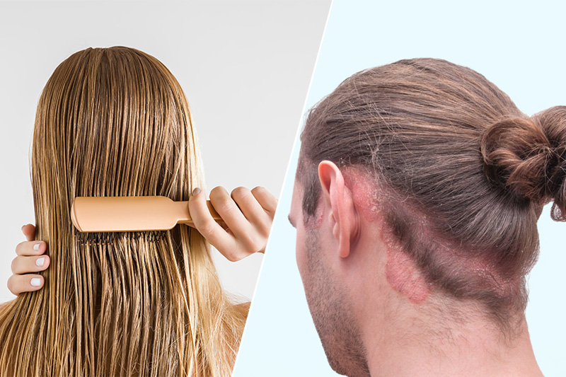 7 Illnesses Caused By Sleeping With Wet Hair