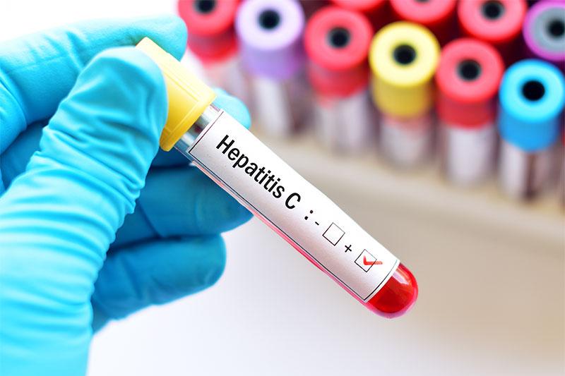 HIV Or Hepatitis