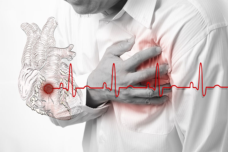 7 Hidden Heart Attack Risks And Ways To Avoid Them